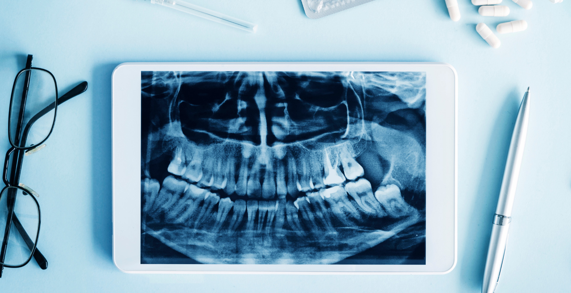 Front mouth x-ray surrounded by glasses, pen and pills around it