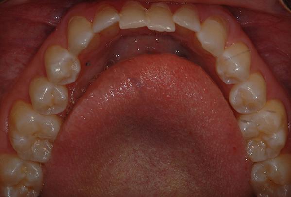 Mouth/teeth before Inman Aligners
