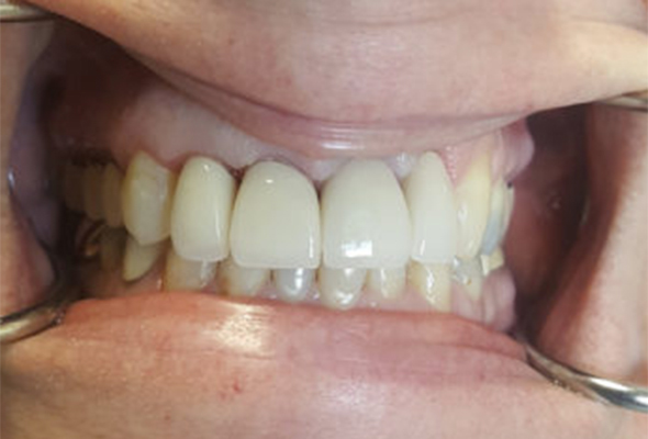 Mouth/teeth after dental treatment