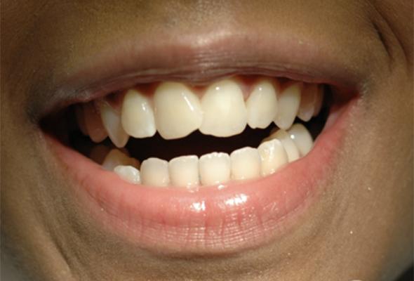 Mouth/teeth before dental treatment