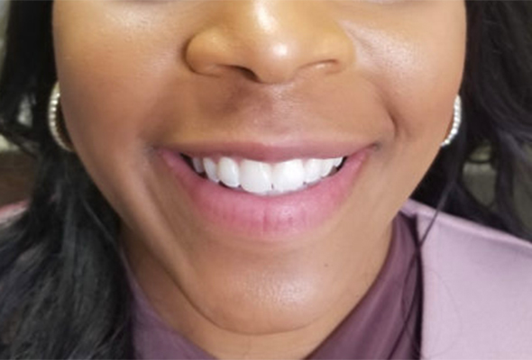Lower half of face with focus on mouth/teeth after dental treatment
